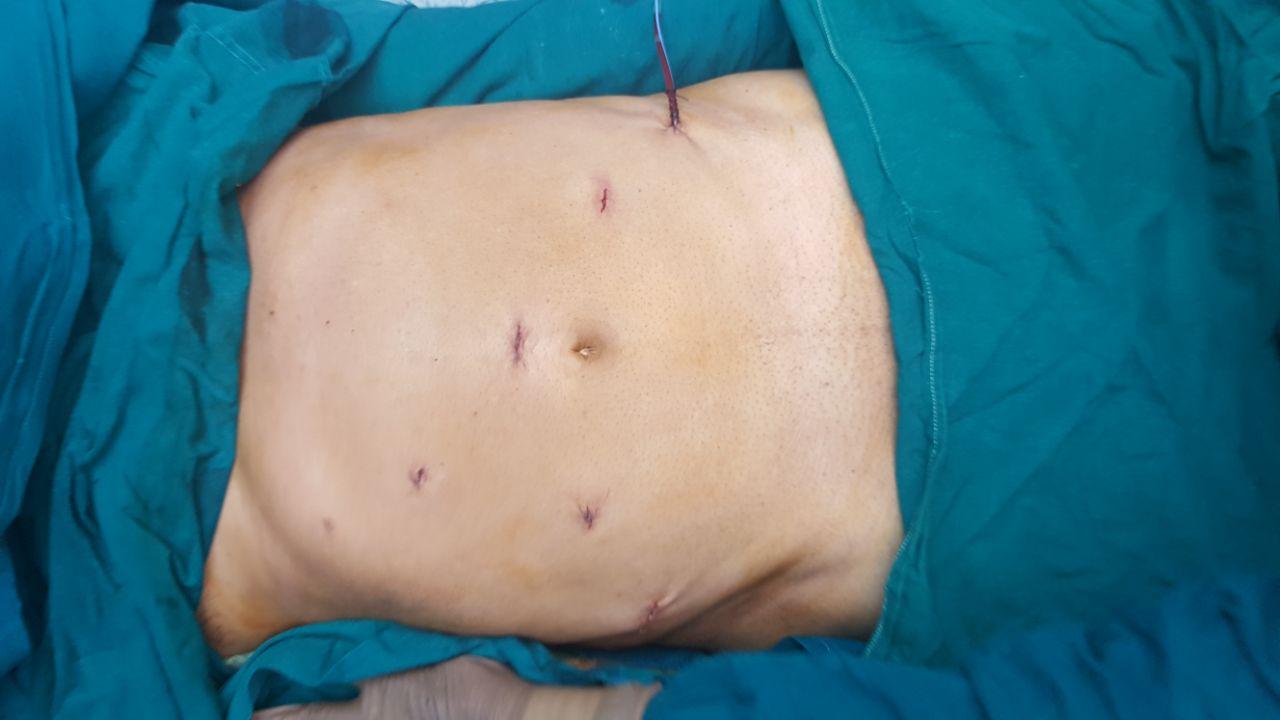 Robotic Radical Prostatectomy Robotic Surgeon Pune